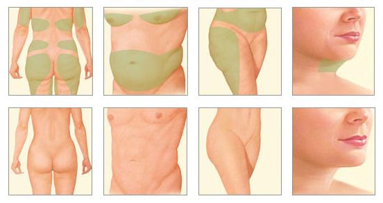 liposuctie kin