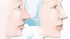 Neuscorrectie, rhinoplastie